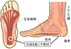 足の裏 痛む 画像